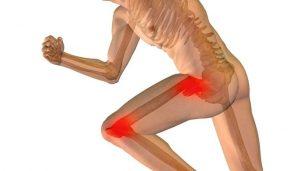 Beweegpogramma artrose heup en knie bij fysiotherapie Klein